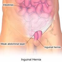 InguinalHernia