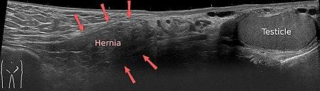 ultrasound of hernia