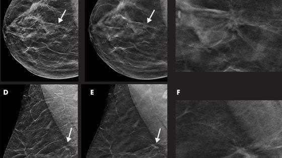 digital breast tomosynthesis