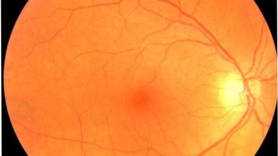 fundus eye