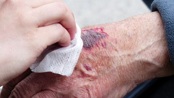 wound healing in old